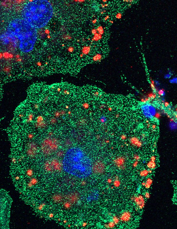 Image of a phagocytic cell marked in the color green with engulfed dead apoptotic neurons marked in the color red during cleanup process. Photo by Shun-Ming Ting from UTHealth