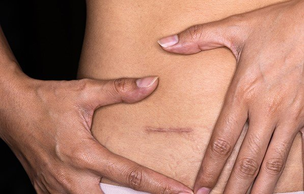 image from Pioneering research shows the benefits and risks of treating appendicitis with antibiotics instead of surgery