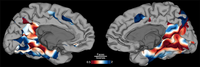 Image showing a map of the brain surface showing regions that preferentially activate during face (blue) and scene (red) identification.