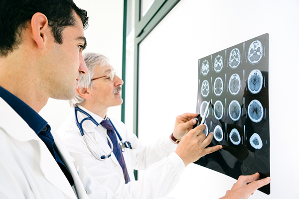Photo of doctors examining brain images for signs of a stroke. (Photo courtesy of Getty Images)