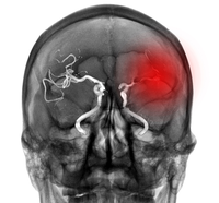 New research from the BRAINS Research Laboratory at UTHealth reveals that inter-alpha inhibitor proteins (IAIP) could potentially represent a key, novel treatment for ischemic stroke. (Photo by Getty Images)