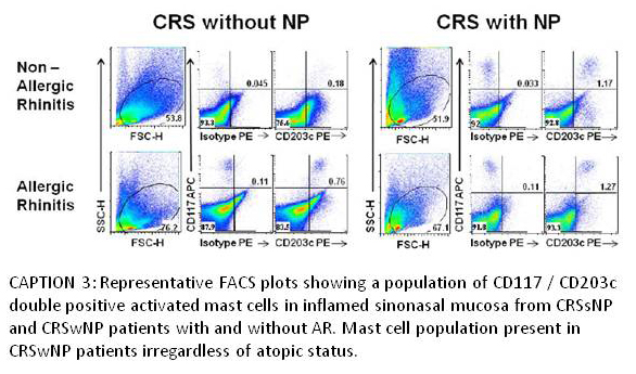 CRS With and Without NP
